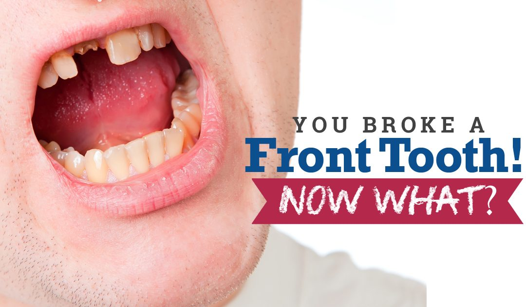 Broken Front Tooth! Now What?