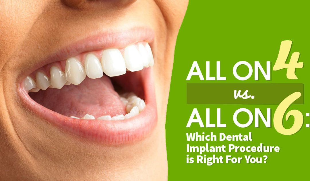 All On 4 vs All On 6 Dental Implants: Which Procedure is Right For You?
