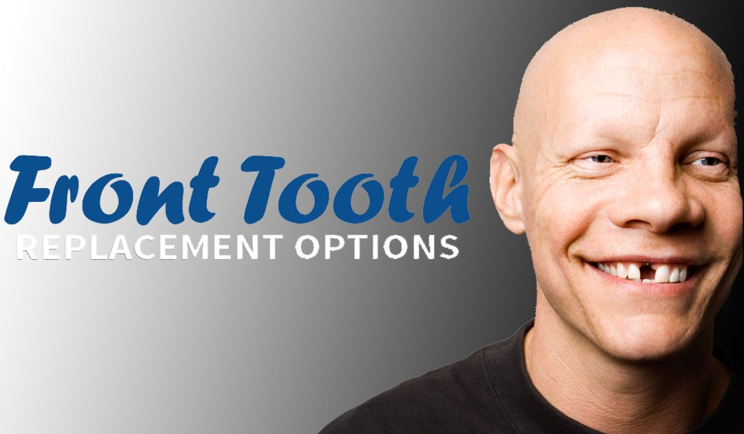 Front Tooth Replacement Options